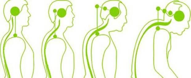 Хруст в шее: почему хрустит и как от этого избавиться