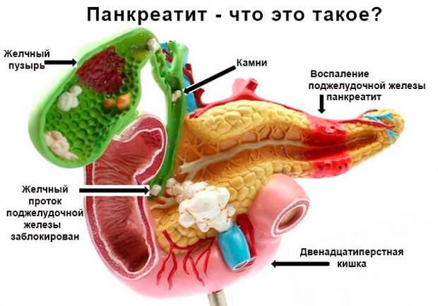 Что полезно знать про острый панкреатит