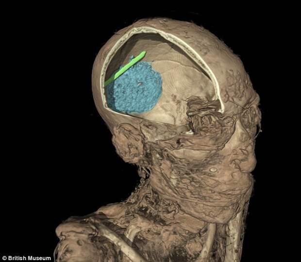 Томография раскрывает тайны мумий