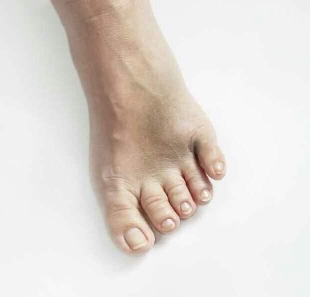 Пальцы ног могут рассказать о вашем будущем