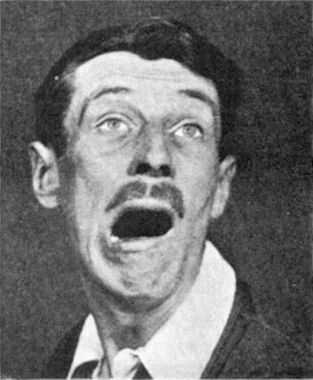 Сонная болезнь — странный недуг в истории медицины