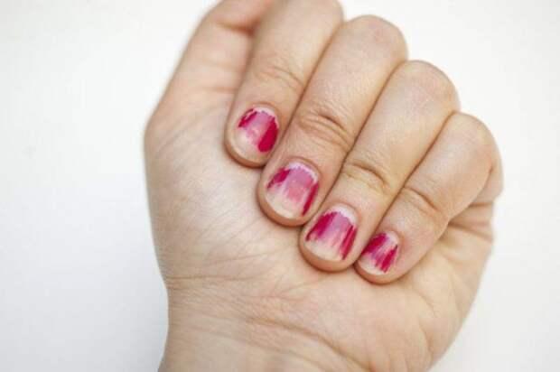 женская рука с облезшим лаком на ногтях