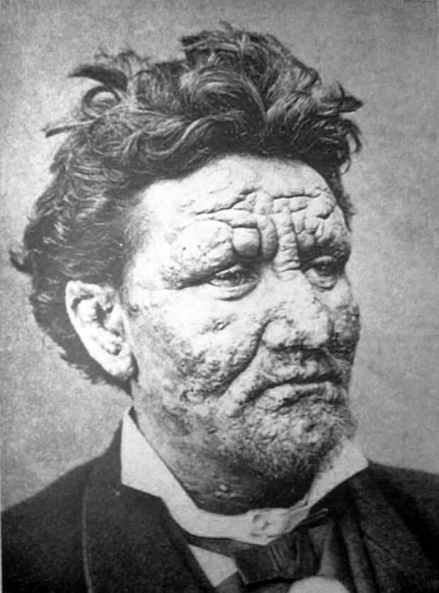 История болезни: проказа