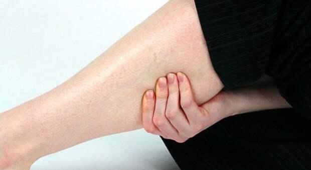 Как понять, есть ли у вас тромбы