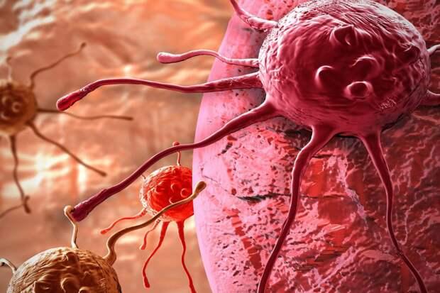 11 ранних симптомов рака, которые часто игнорируются