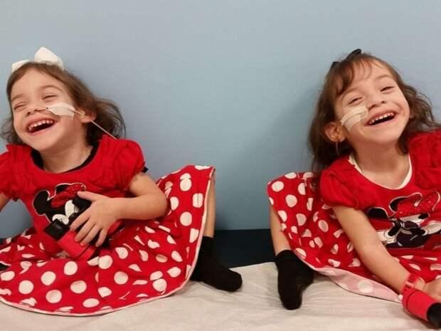 Ева и Эрика Сандовал близнецы сиамские, бывает же, выросли, жизнь, интересное, разделили