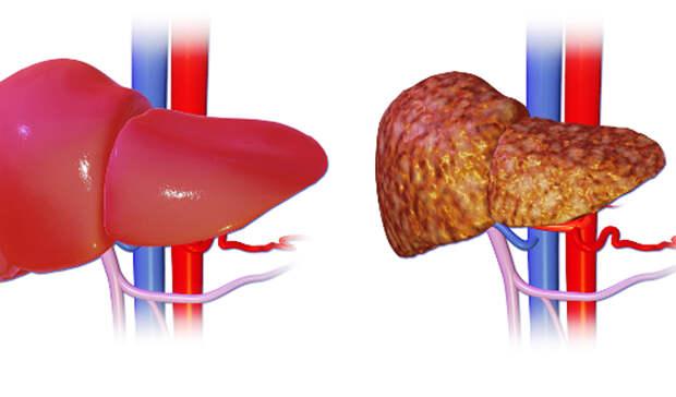 Знания о холестерине, которые продлевают жизнь