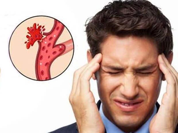 Аневризма сосудов головного мозга. Ранние признаки