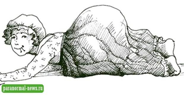 Странный случай Кэтрин Хадсон, превратившей себя в «подушечку для игл»