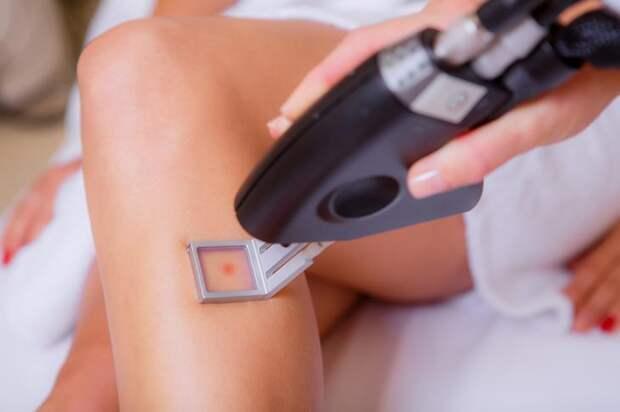 Миф 8: Работа лазера может привести к онкологии