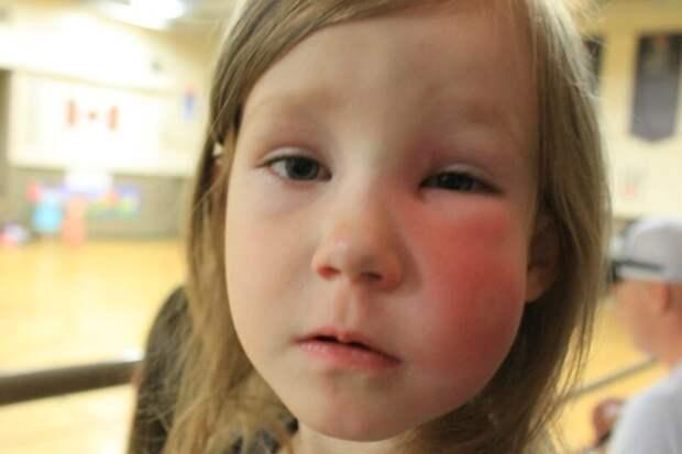 Как Аллергия может Вас убить | Что такое отёк Квинке?
