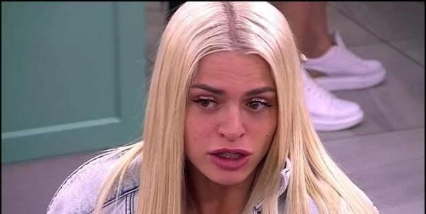 """Звезда """"Дома-2"""" Анастасия Балинская показала последствия пластики: нос провалился и гниет"""