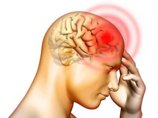 Нехватка этих продуктов провоцирует головную боль