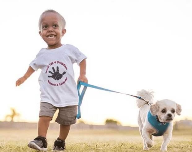 Над мальчиком смеялись из-за необычной внешности, но на помощь ему пришел верный пес