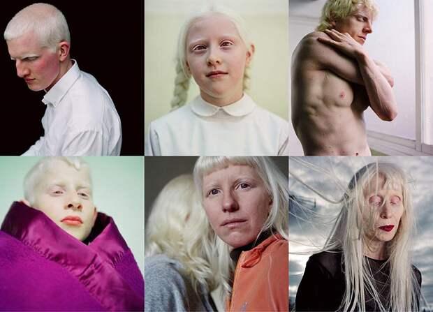 Альбиносы Паолы деГрене