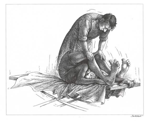 Мифический остеохондроз