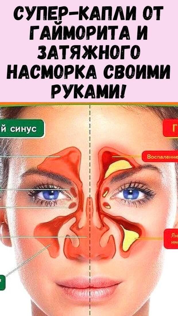 ГАЙМОРИТ И ЗАТЯЖНОЙ НАСМОРК.