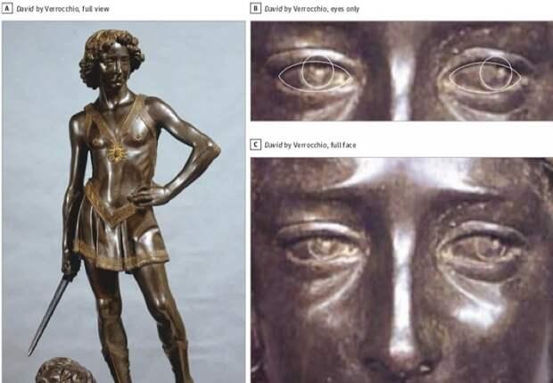 Британские учёные поставили диагноз Леонардо да Винчи