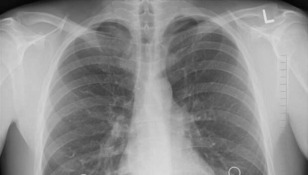 В Подмосковье смертность от туберкулеза снизилась почти на 20%
