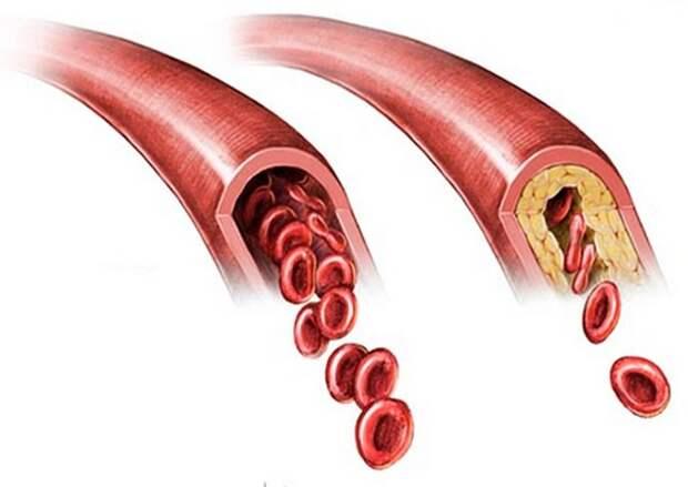 Эксперт назвал три продукта, провоцирующие образование тромбов