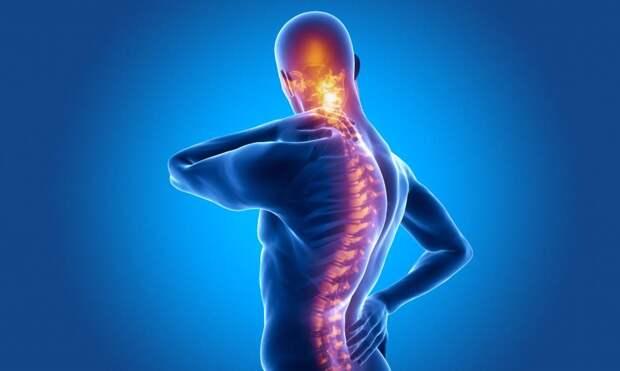 Болезнь Бехтерева (анкилозирующий спондилоартрит): причины, симптомы, диагностика и лечение