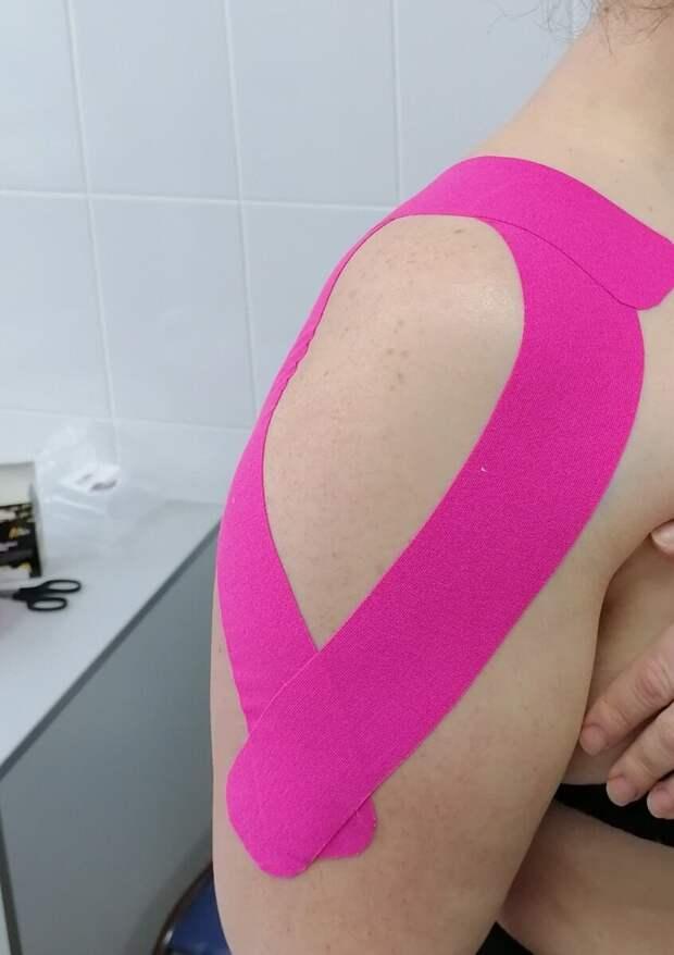 Вариант наложения тейпа на область плечевого сустава