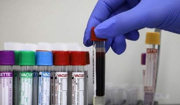 Число смертей откоронавируса вКарачаево-Черкесии увеличилось до95