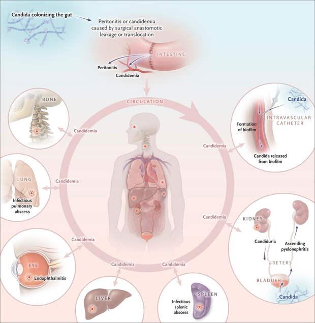 Симптомы, которые указывают на разрастание дрожжей в организме