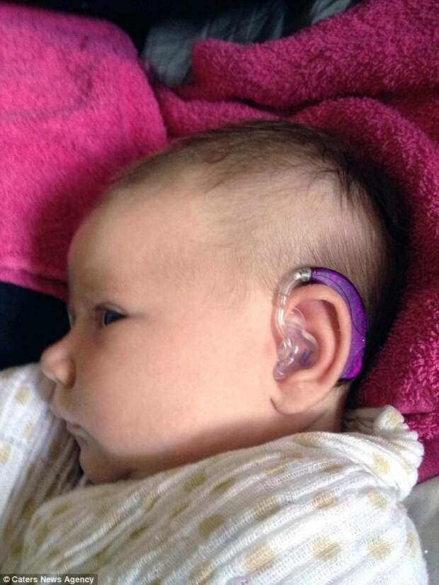 Пытаясь помочь дочери справиться с потерей слуха, мать построила бизнес международного масштаба дети, изобретения, слоховой аппарат