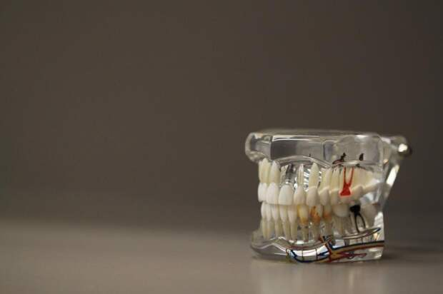 В Новой Зеландии разработали необычный способ похудения: специалисты создали прибор, способный блокировать челюсть человека