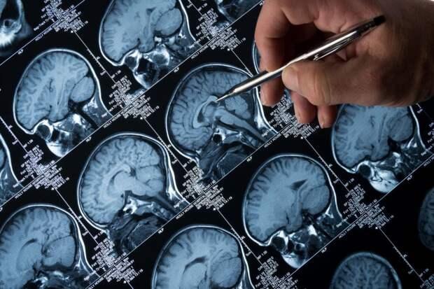 Словацкие ученые тестируют вакцину против болезни Альцгеймера