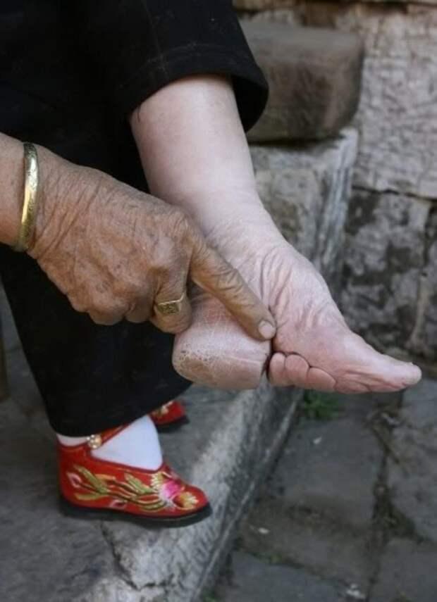 Да, красота требует жертв, но такое уму непостижимо: ноги китайских «женщин-лотосов»