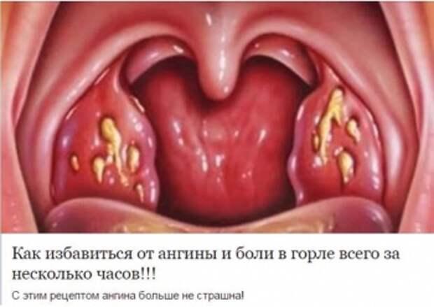 Про народные рецепты лечения ангины