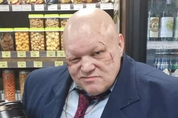Стас Барецкий заявил, что его избили фанаты певицы МакSим