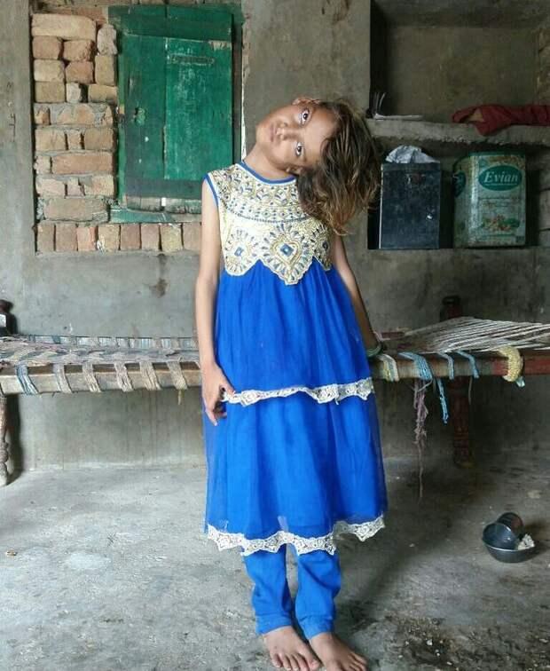 Мир под прямым углом: шея 11-летней пакистанки вывернута на90 градусов