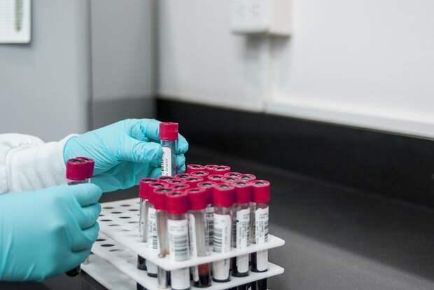 Российские ученые научились определять коронавирус в 3-4 раза быстрее, чем раньше