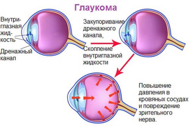 Глаукома: почему возникает это заболевание и как его можно избежать