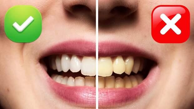 Специалисты рассказали, почему зубы теряют свой белоснежный вид