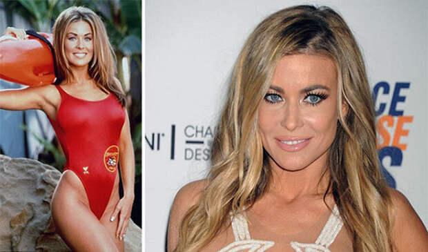 Эффектные актрисы, сыгравшие спасательниц Малибу. Какие они сейчас?