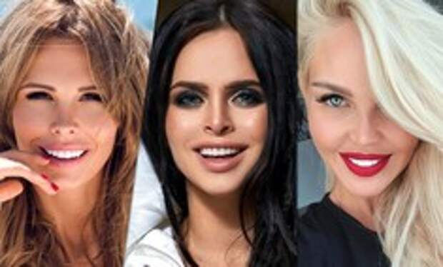Фаянсовая белизна:  звезды, которые переборщили с «голливудской улыбкой»