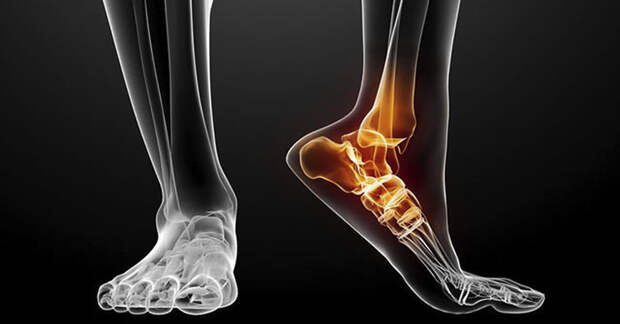 Боль в лодыжке: причины возникновения и способы лечения