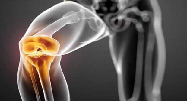 Хочу поделиться опытом, как мне удалось унять хруст и боли в коленных суставах