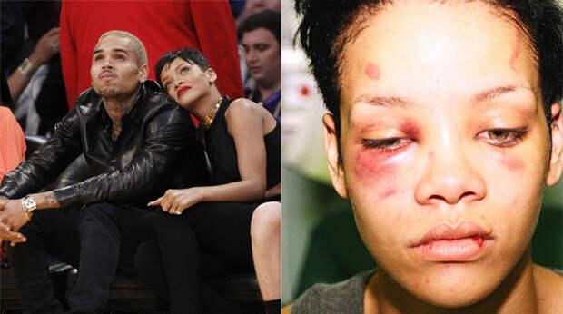 Звезды тоже плачут: 10 знаменитых жен, которые терпели домашнее насилие