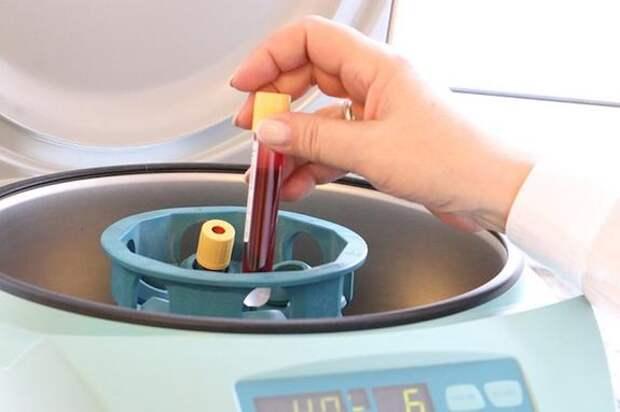 Гематолог Ненашева рассказала о способе выявления рака крови на ранней стадии