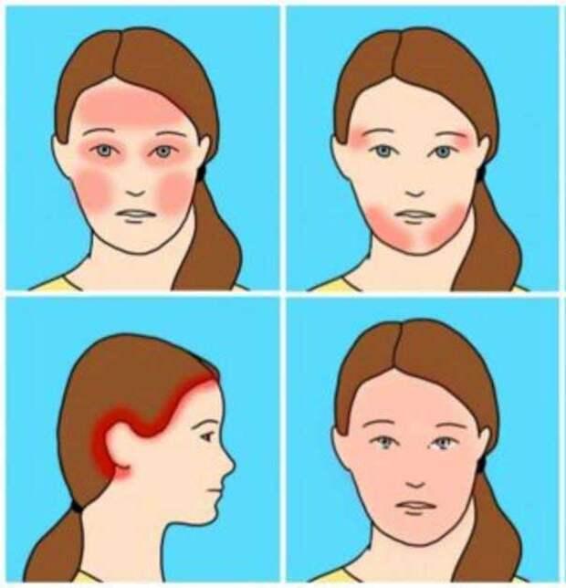 Есть 10 видов головной боли. Вот реальные причины каждой из них