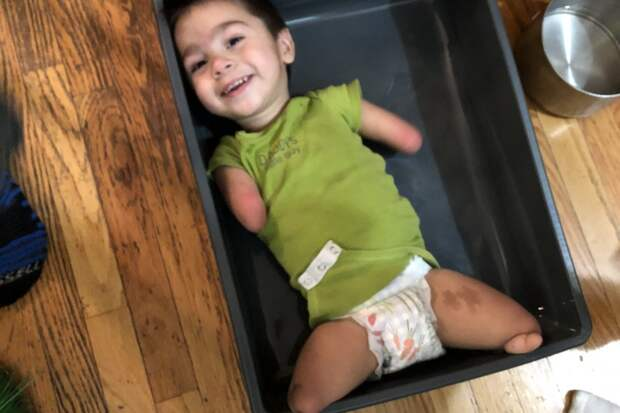 Без рук, без ног, без проблем: встречайте 4-летнего Генри