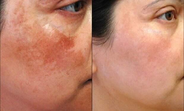 8 натуральных средств для борьбы с темными пятнами на коже