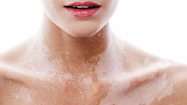 Белые пятна на коже: что их вызывает?