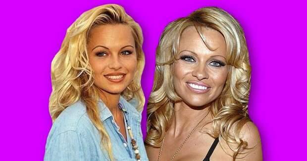 7 красивых знаменитостей, которые испортили себя пластикой