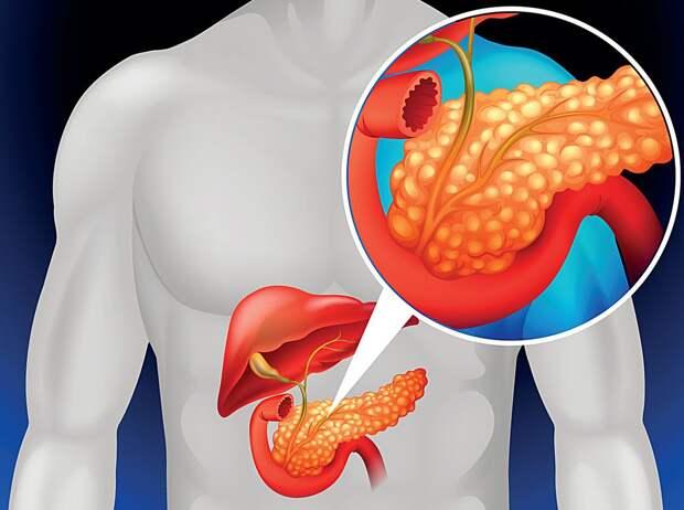 Диета при панкреатите: что можно есть, что нельзя